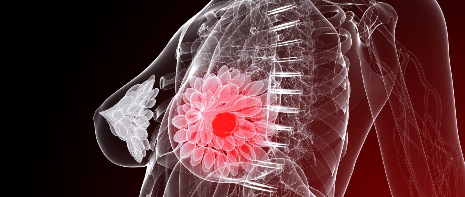 Как не заболеть раком молочной железы