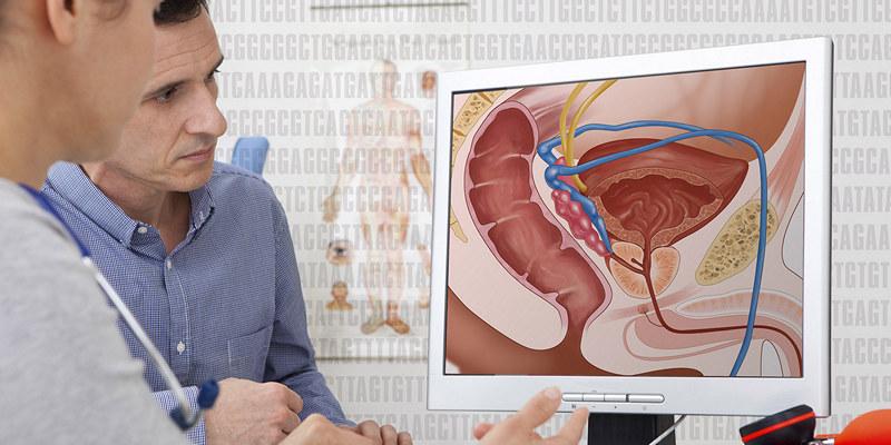 Андрогенная депривационная терапия (ADT) при раке простаты